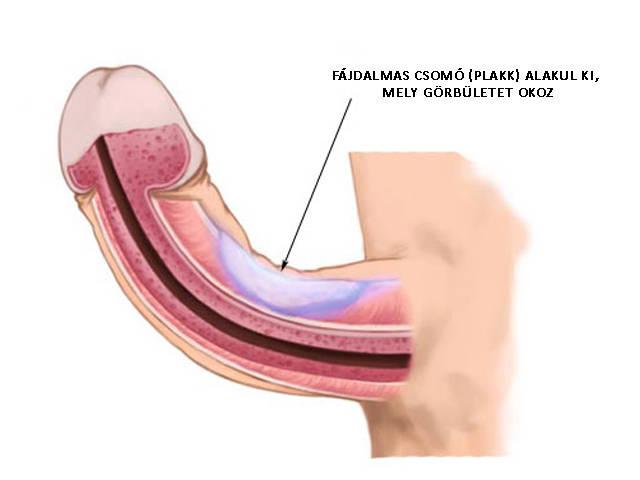 """A Peyronie betegség a """"férfiasságot"""" támadja - Dr. Zátrok Zsolt blog"""