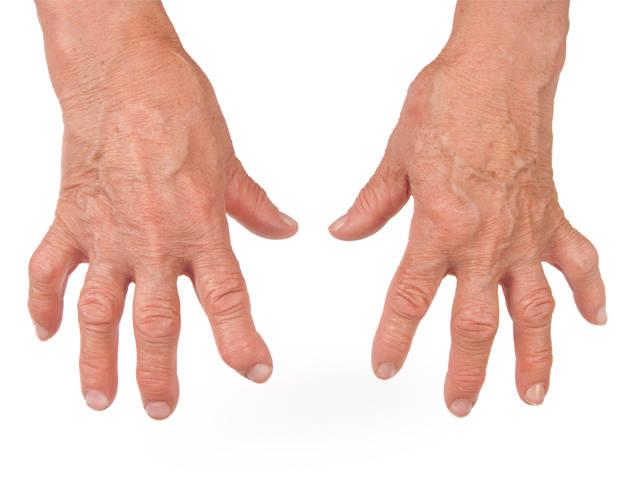 tartós könyökfájdalom epicondylitis könyökízület betegség