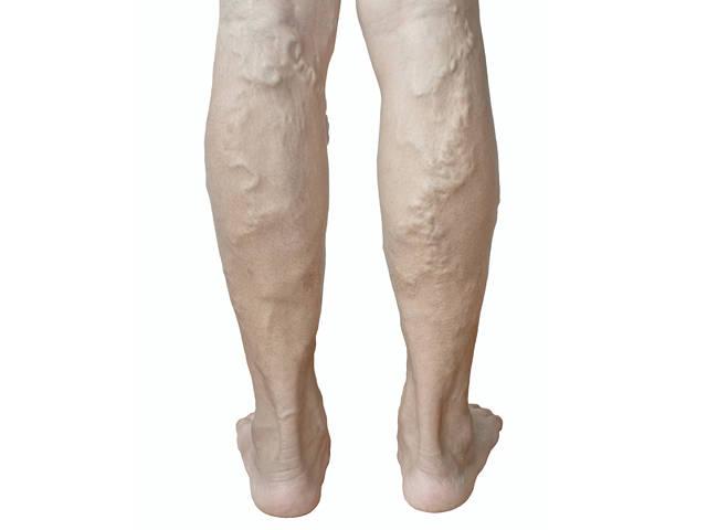 venotonikus a láb visszér ára